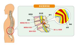 脊柱管狭窄症解説図